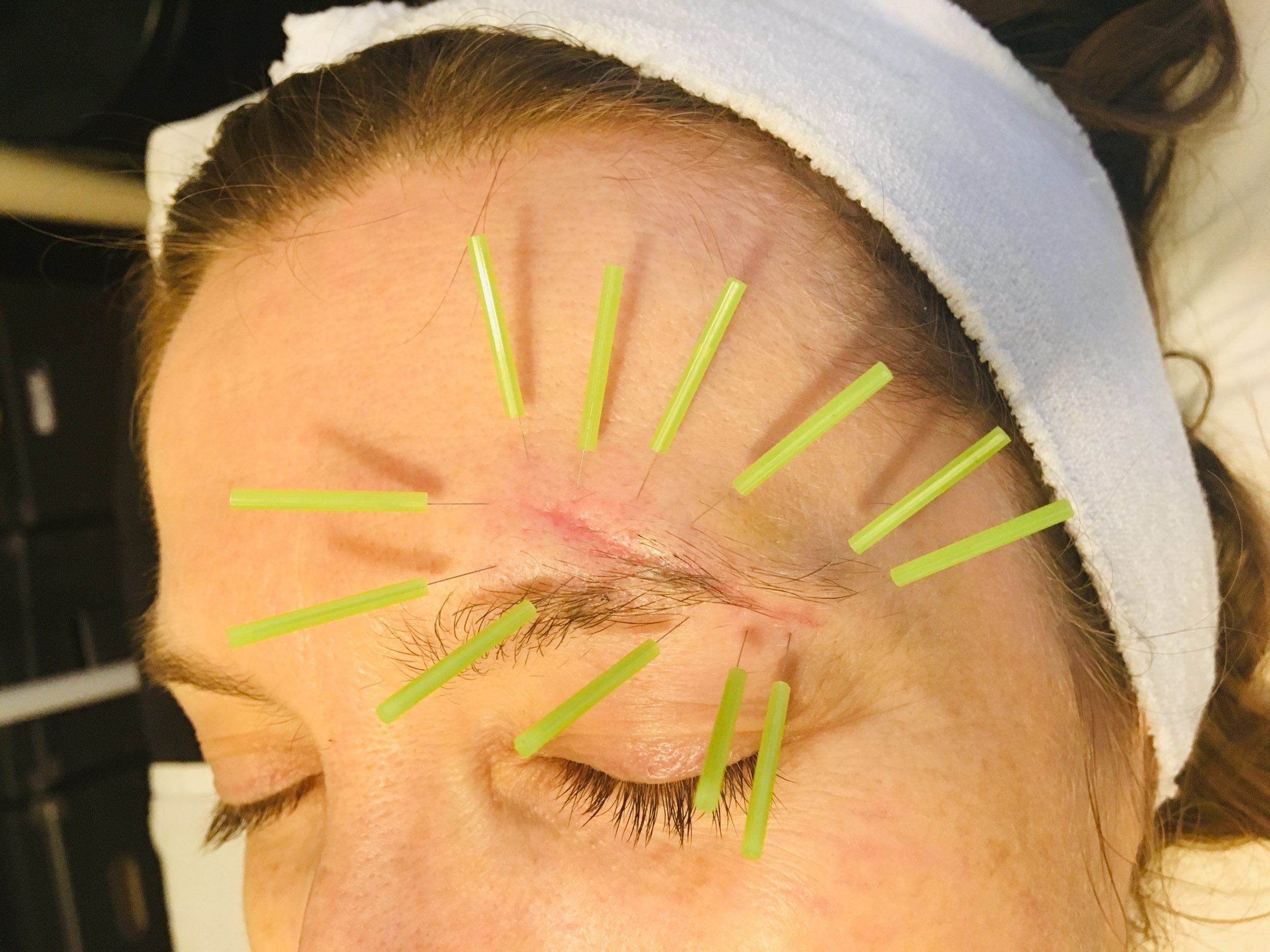 facial scar treatment